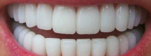 fogpótlás - fogbeültetés, implantátumok
